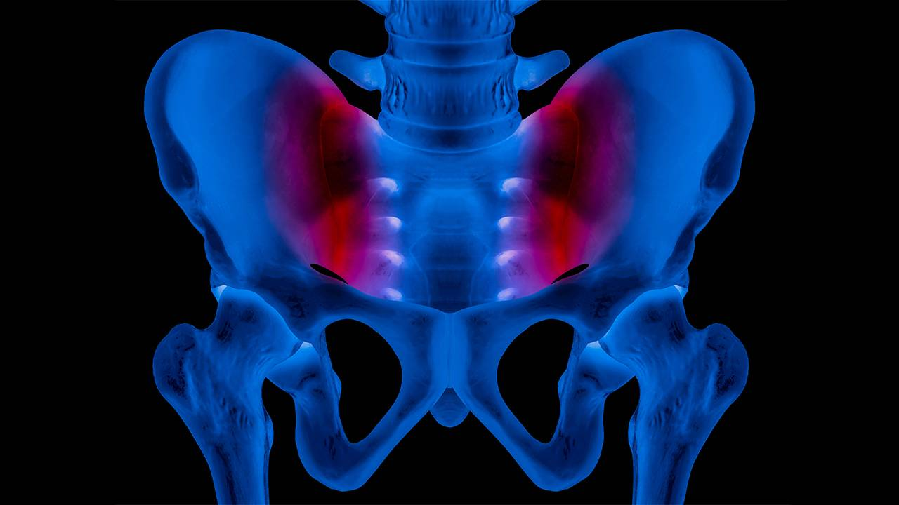 Lower Back Pain? Maybe It's Not Your Back