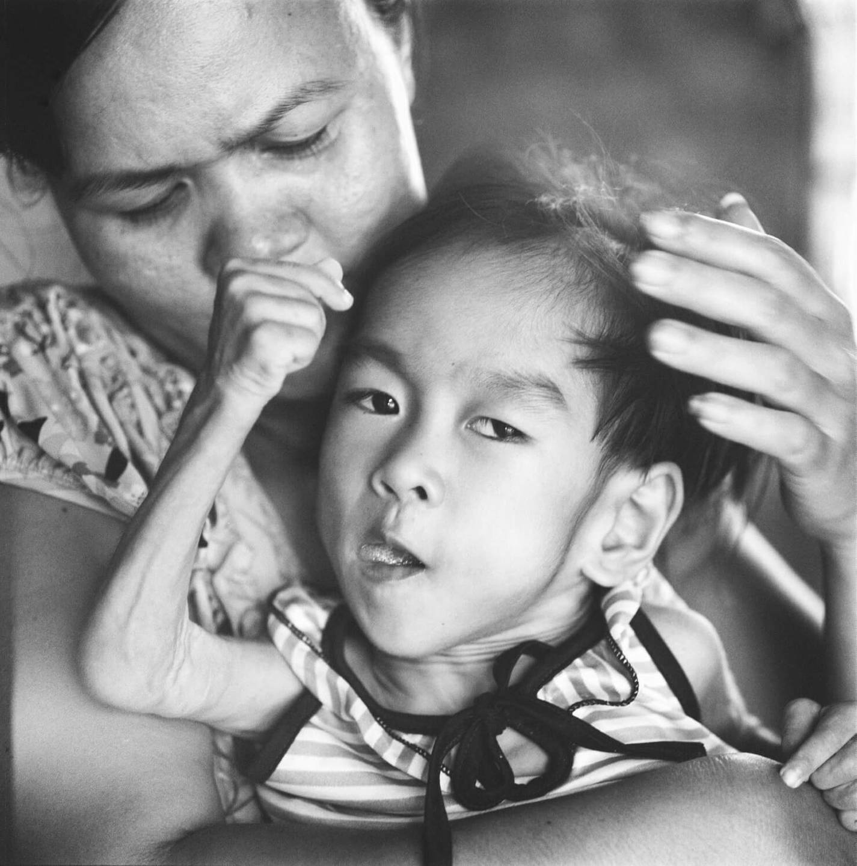 An Asian mother holding her deformed infant.