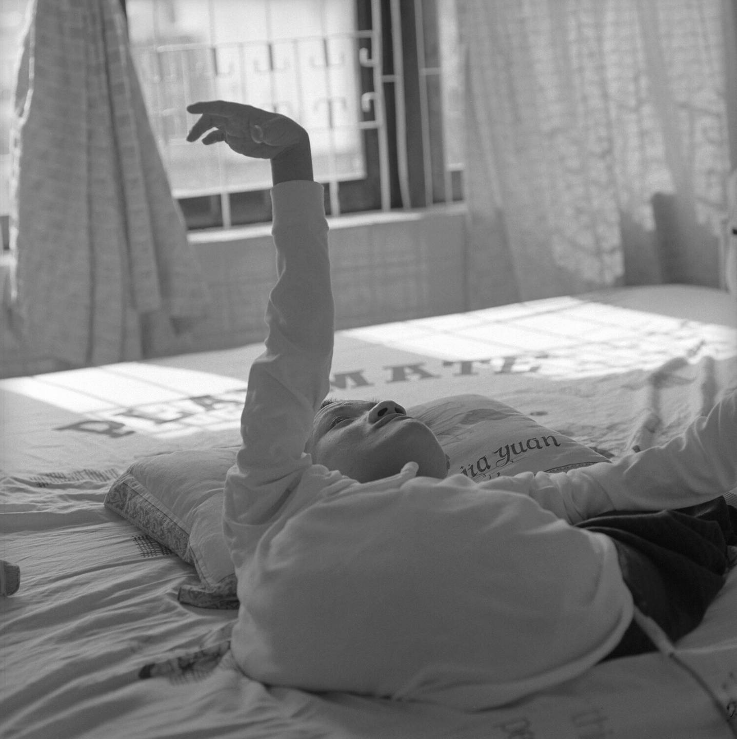 A deformed Asian child laying on a bed, arm raised into the air.