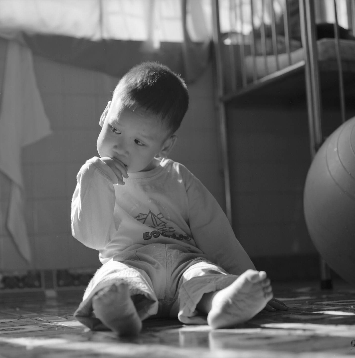 A deformed Asian child seated on the floor.