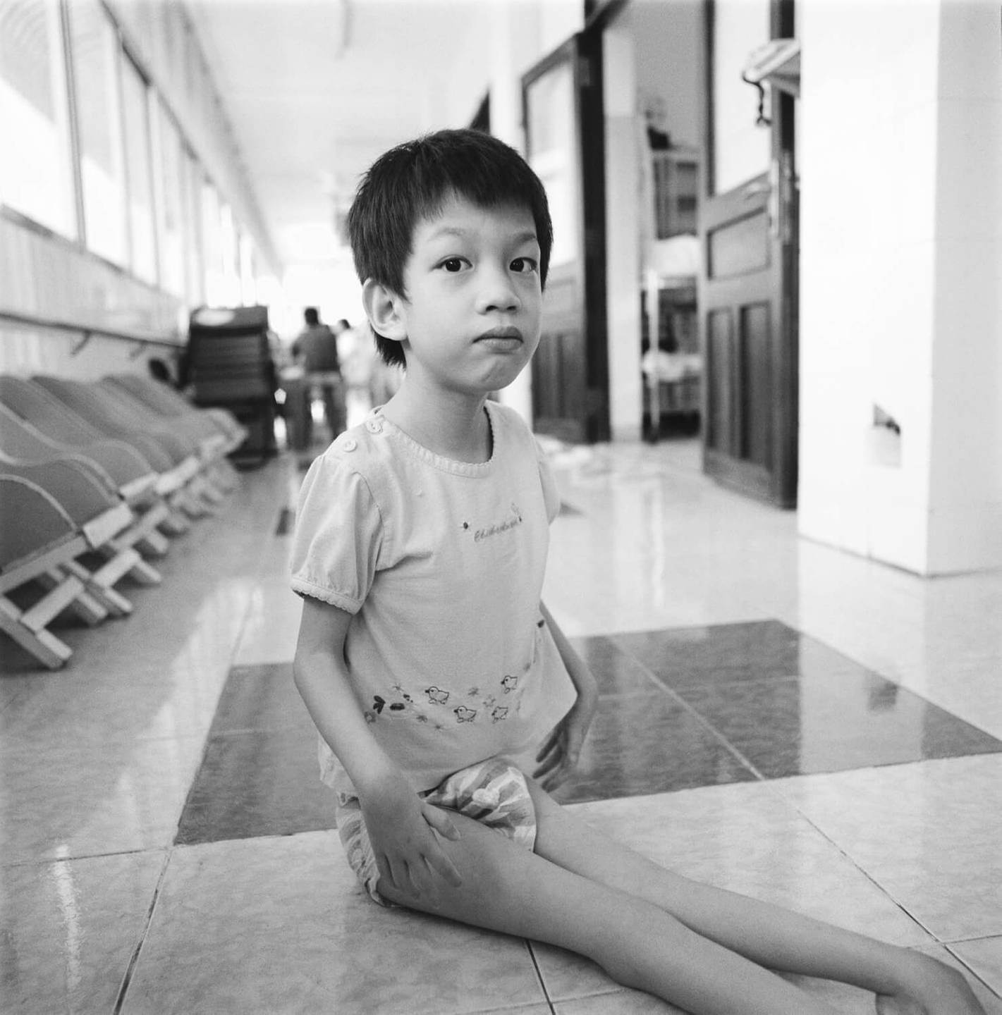 A deformed Asian child in a diaper, seated on a tile floor.