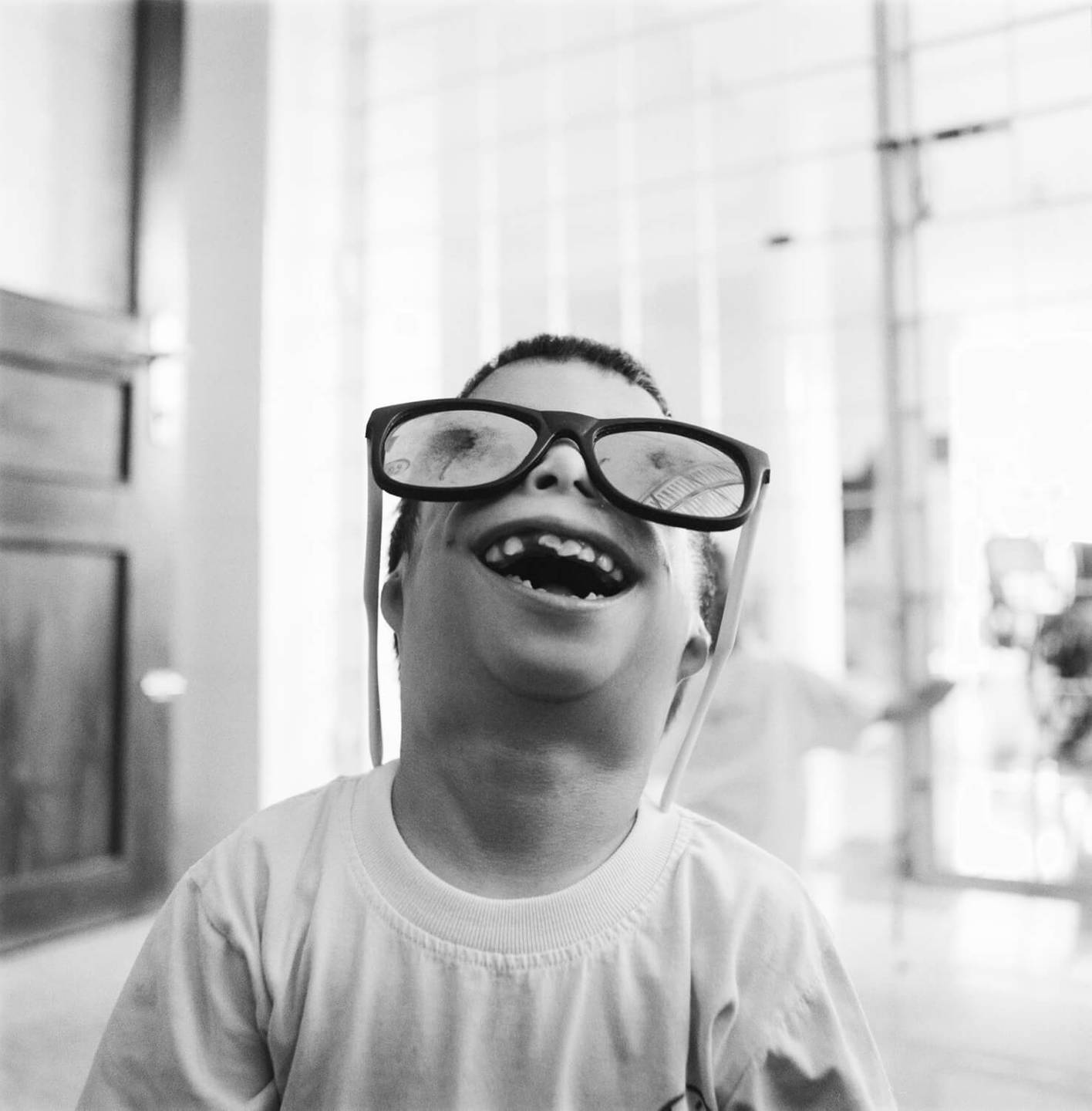 A smiling, deformed Asian child wearing giant sunglasses and looking up into the sky.
