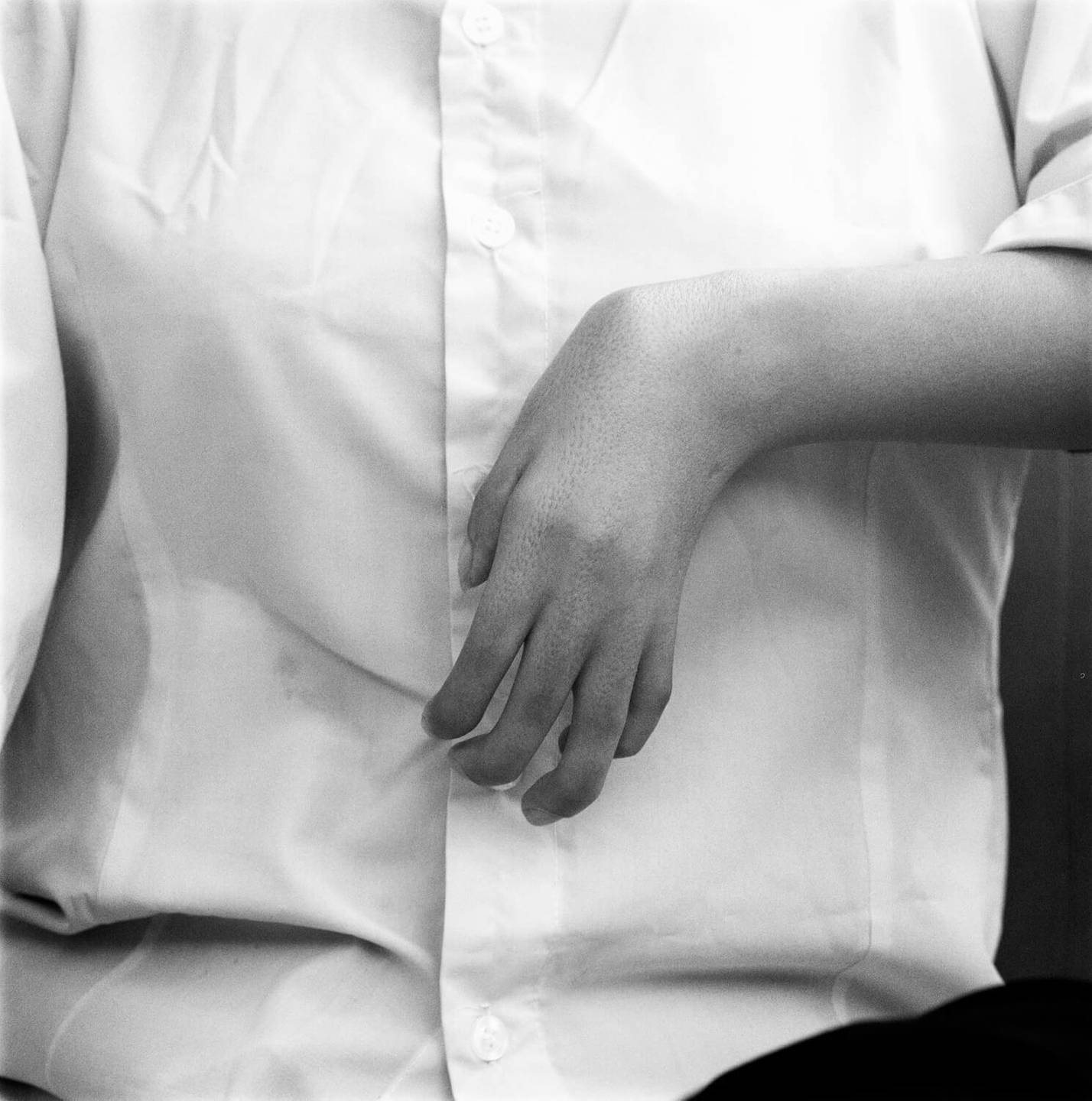 A close up of a deformed hand against a white button-down shirt.