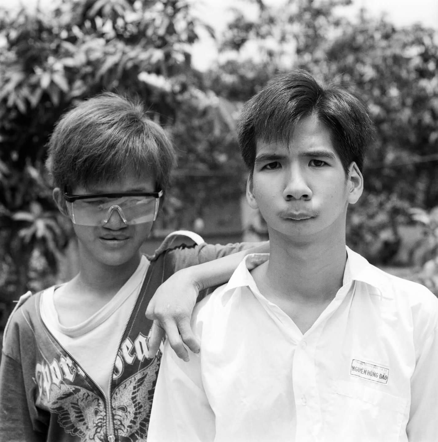 Two young Asian men, both deformed, posing for a portrait outside.