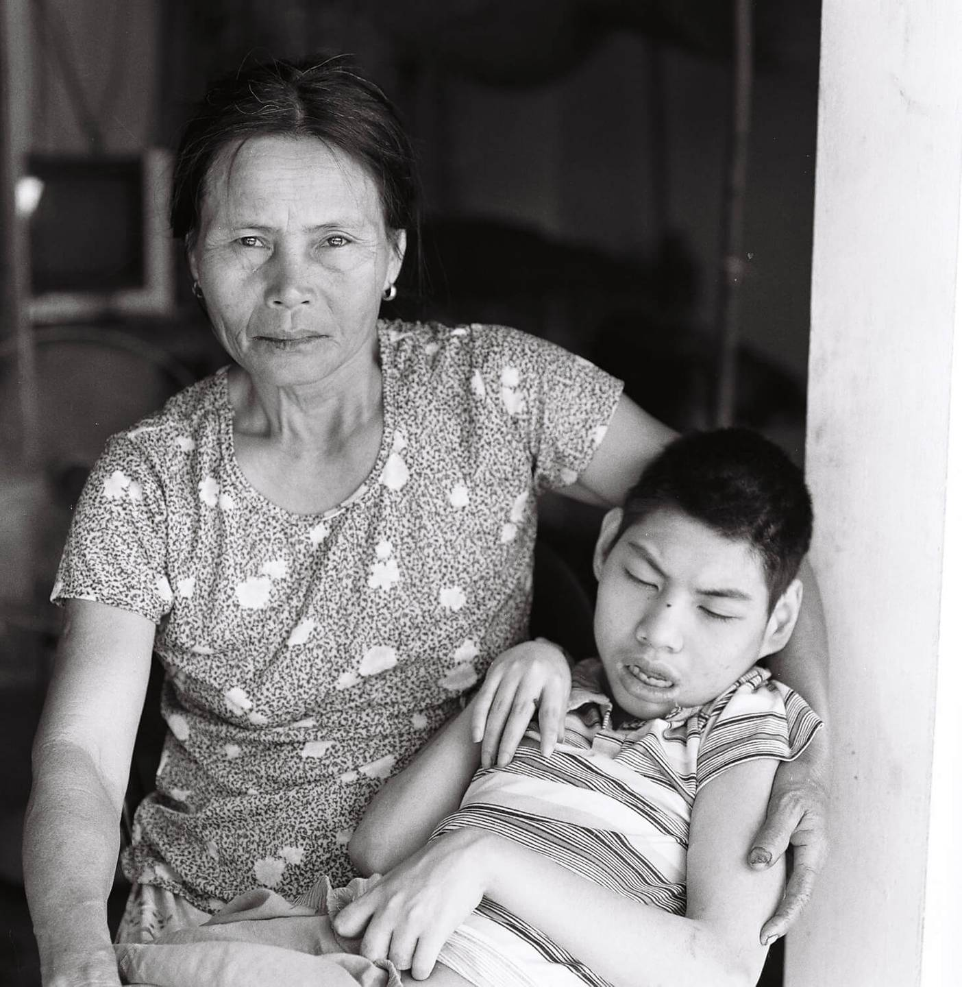 An Asian mother holding her deformed son, looking intensely into the camera.