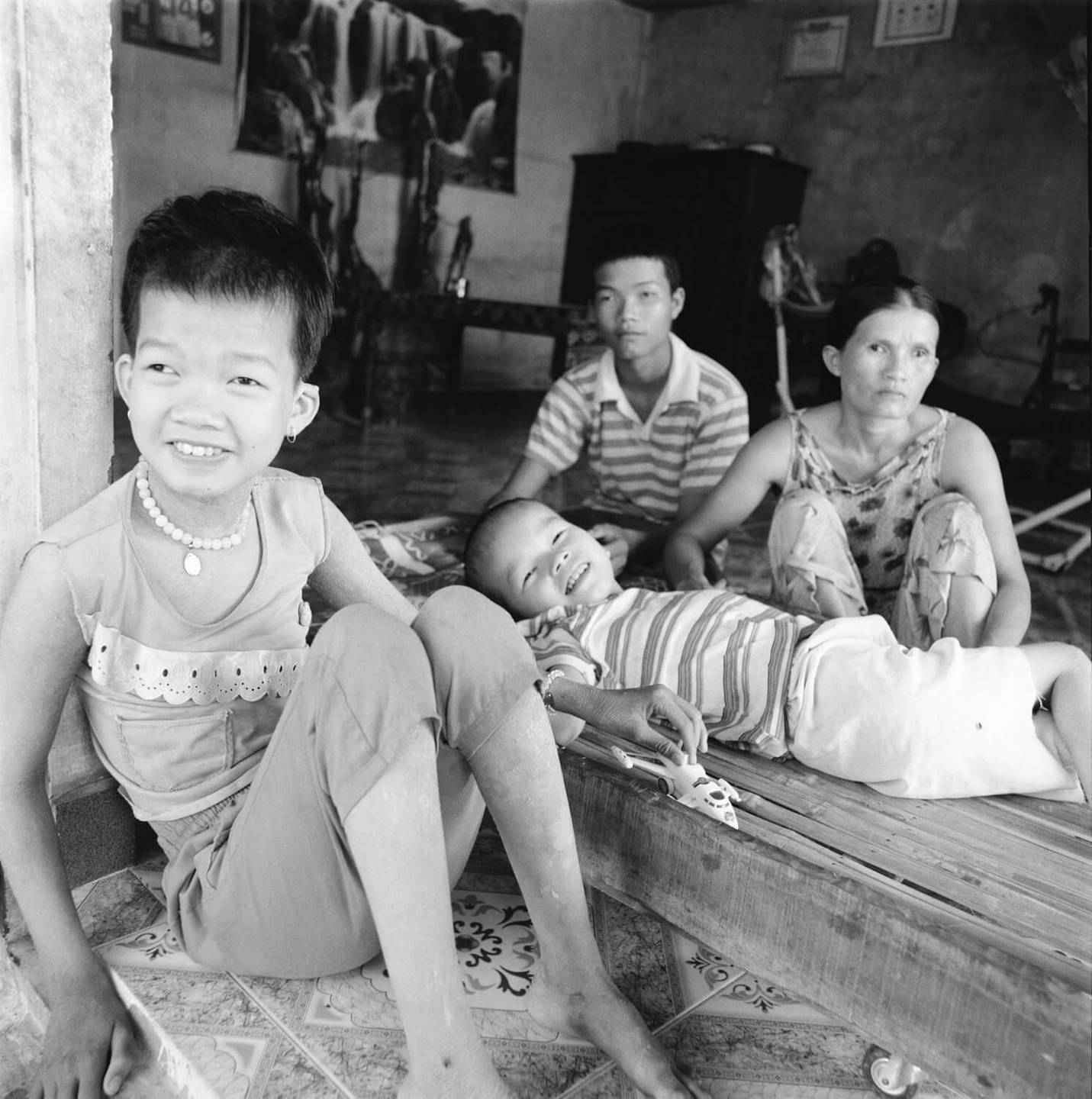Two deformed Asian children, one seated, one lying down, with two adults.