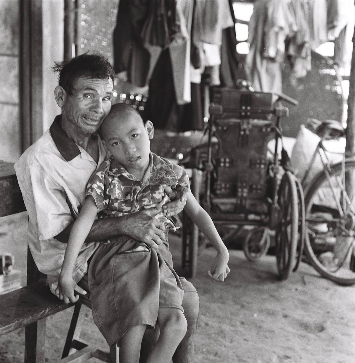 An older Asian man with a deformed child on his lap.