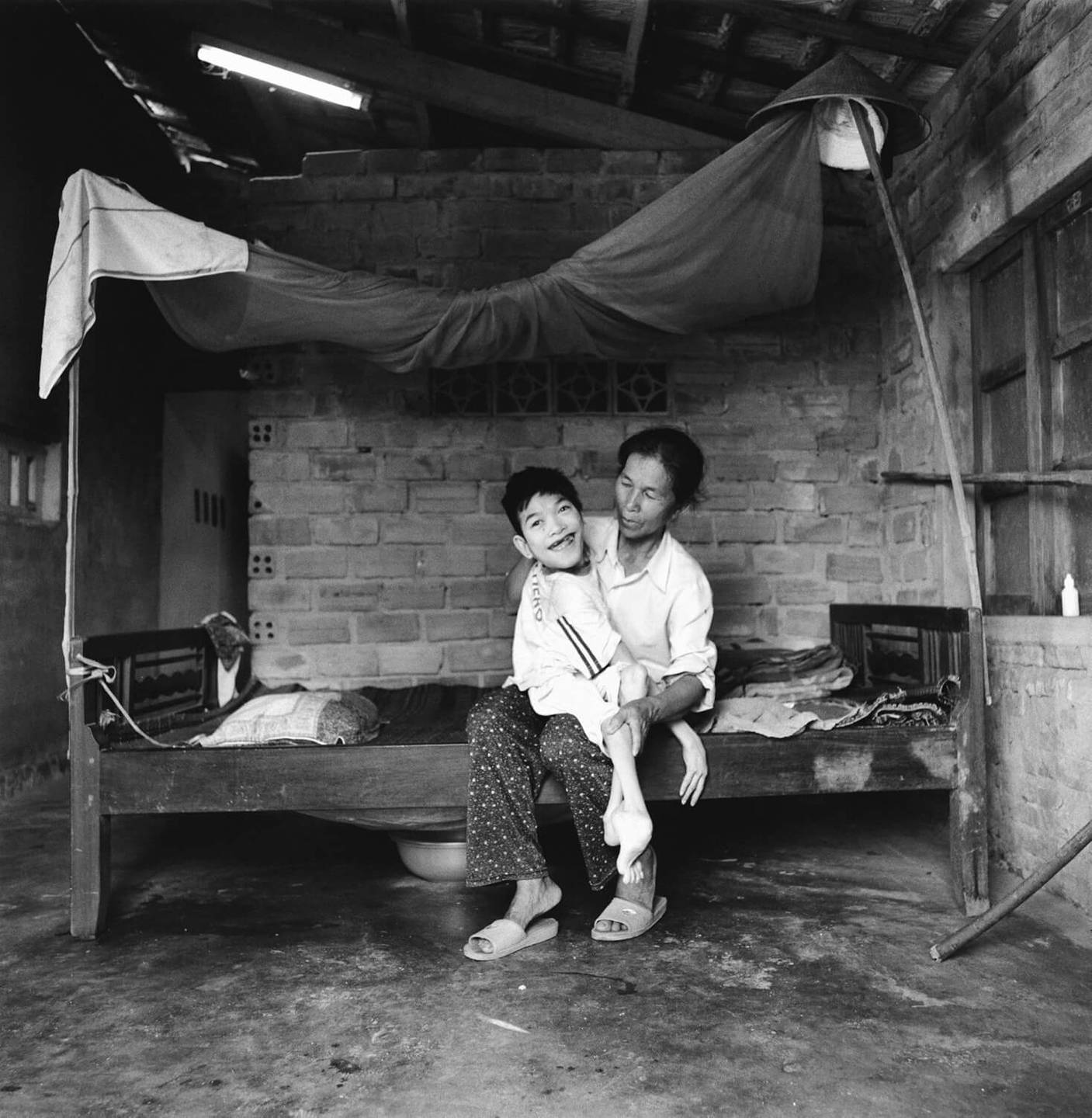 An Asian mother sits on a small bed, holding her deformed son.