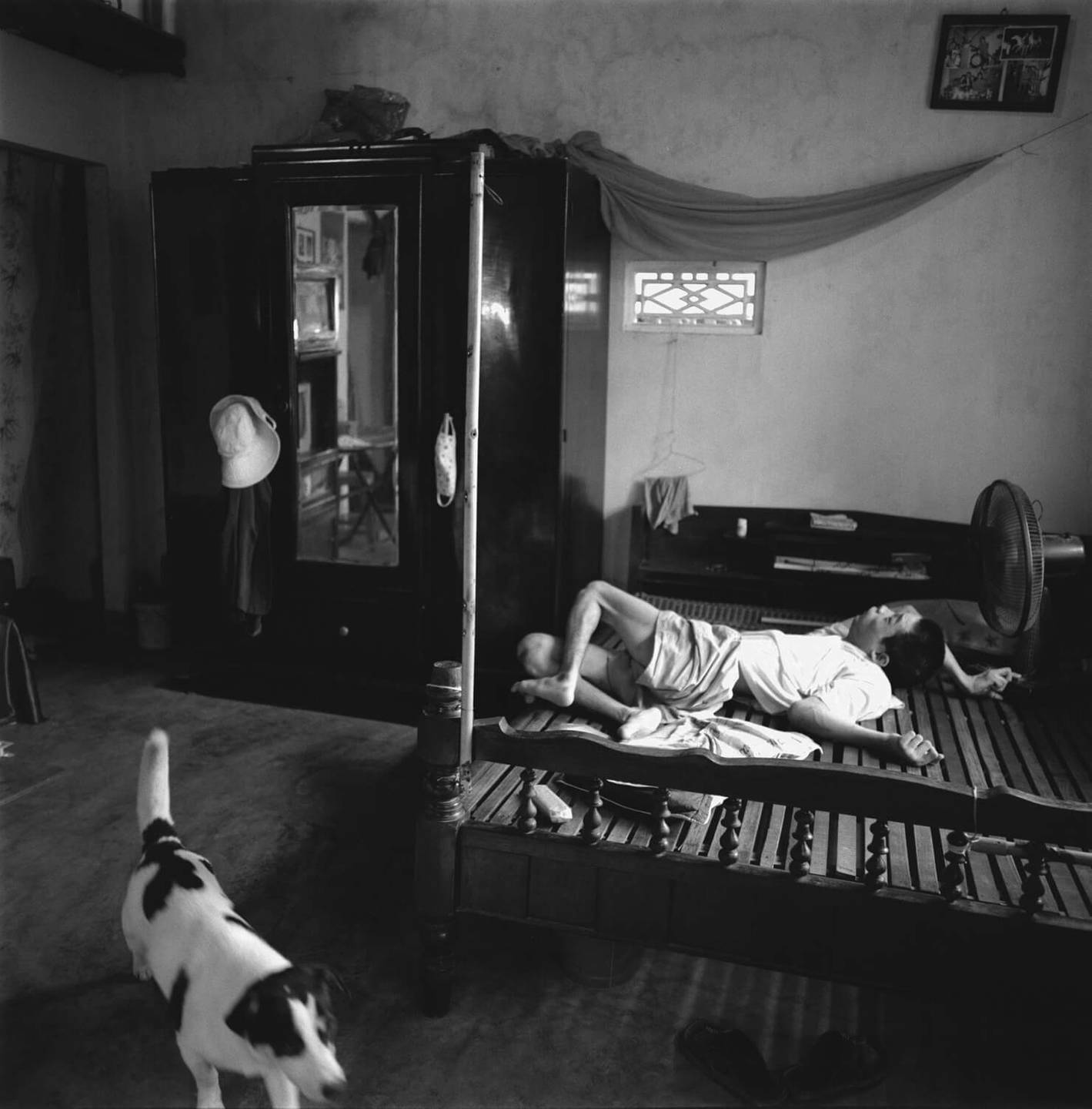 A deformed Asian child lays on a bed, a dog strolls by.
