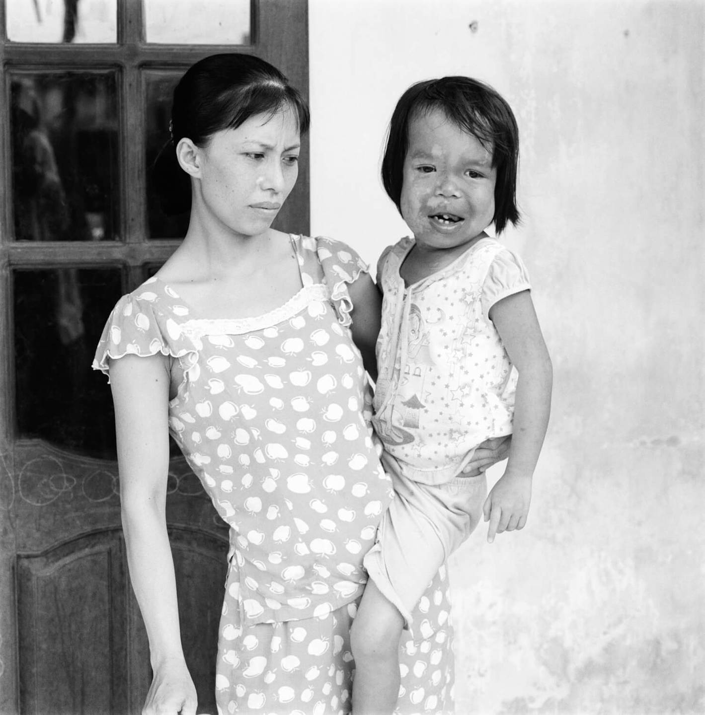 A sad-looking Asian woman holding a crying, deformed child.