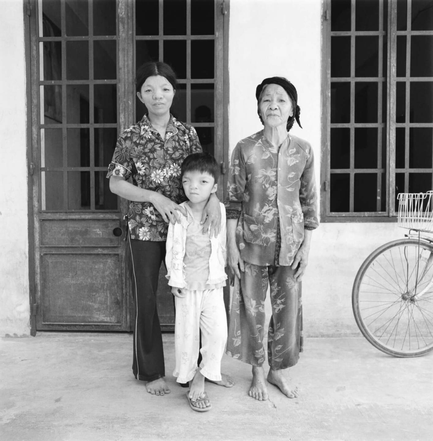 Three generations standing outside a building, the child is deformed.