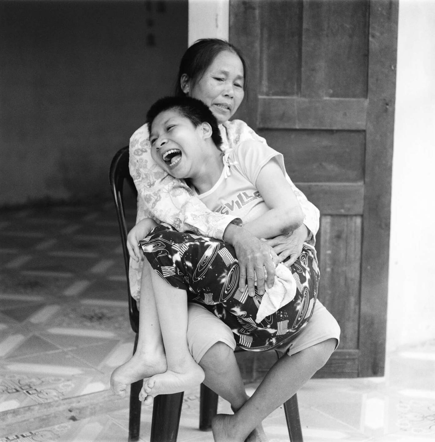 A smiling, deformed Asian child seated on a woman's lap. He is almost too big to hold.