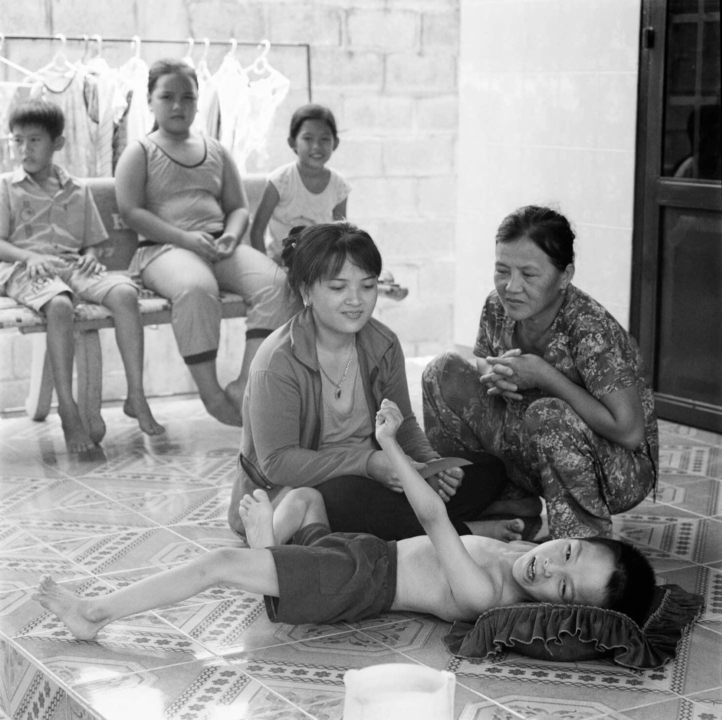 A deformed Asian child lays on the ground while two adults tend to him. Children sit on a bench in the background.