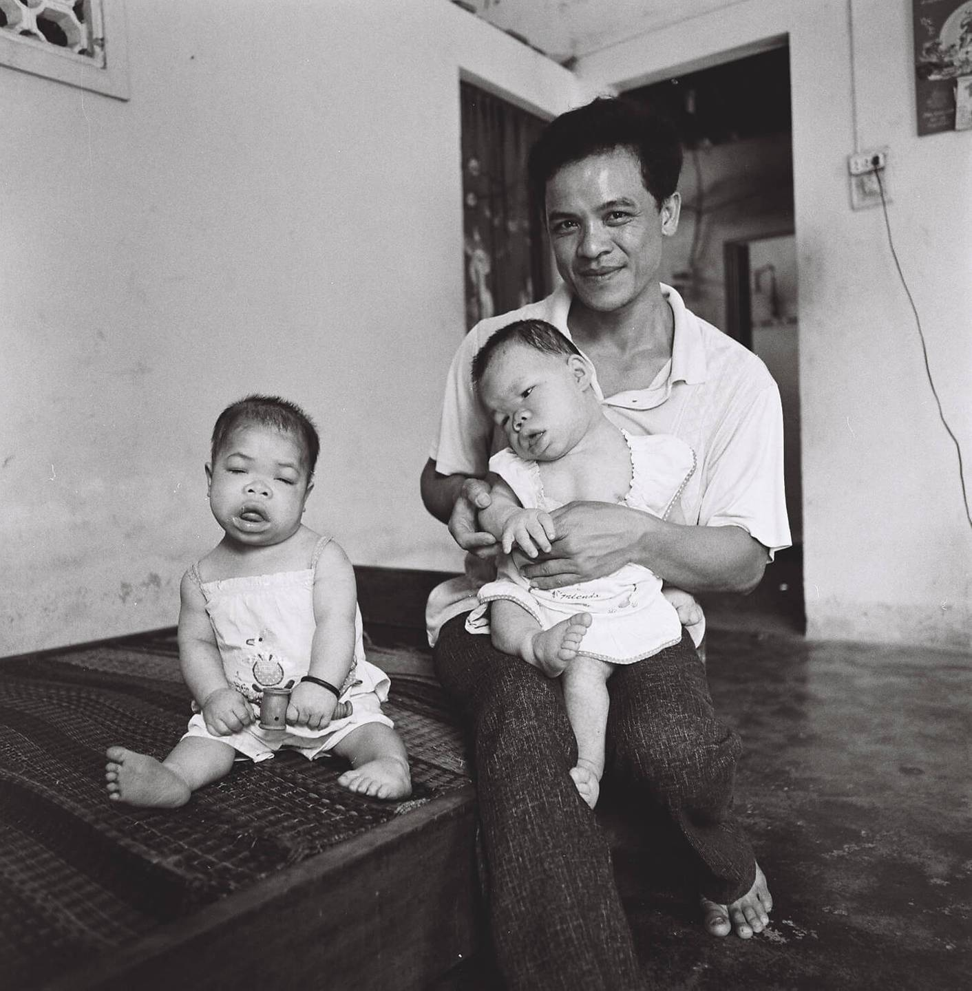 A young Asian father holds one deformed infant, another sits near him.