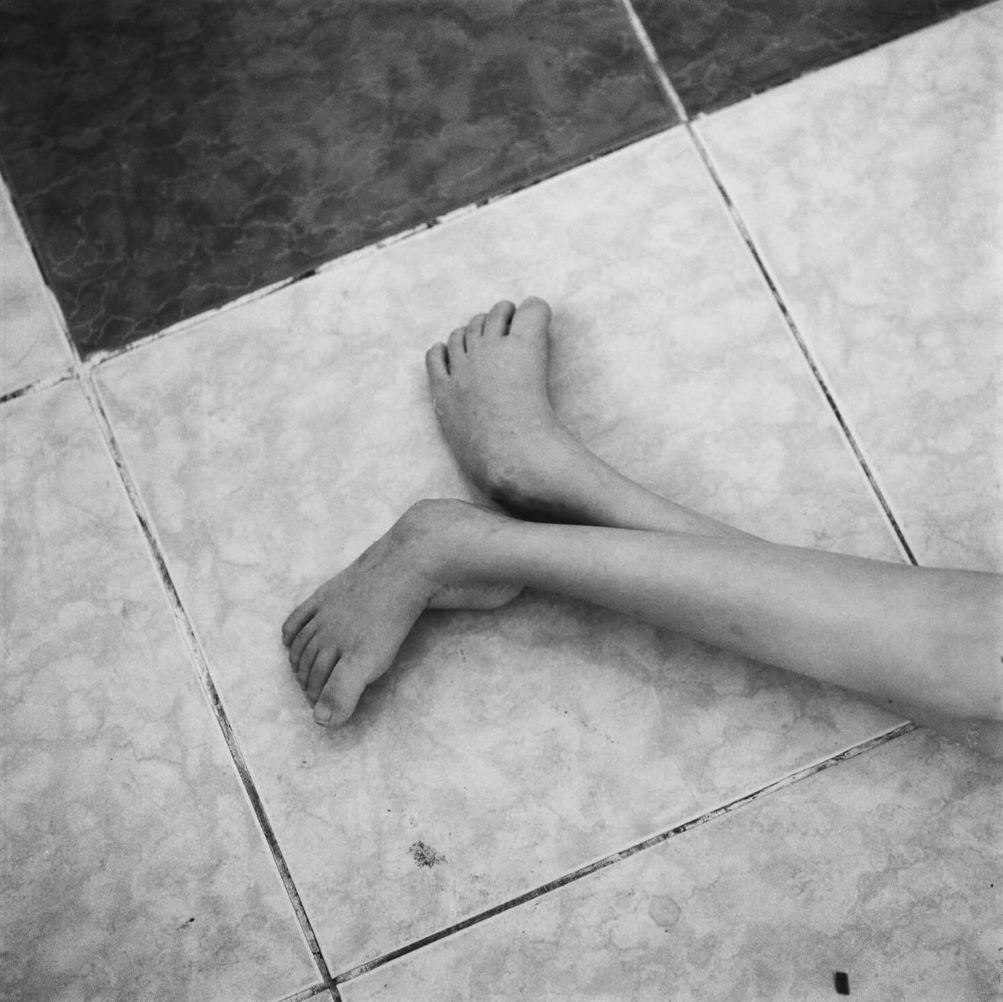 A child's twisted and contorted feet against a tile backdrop.