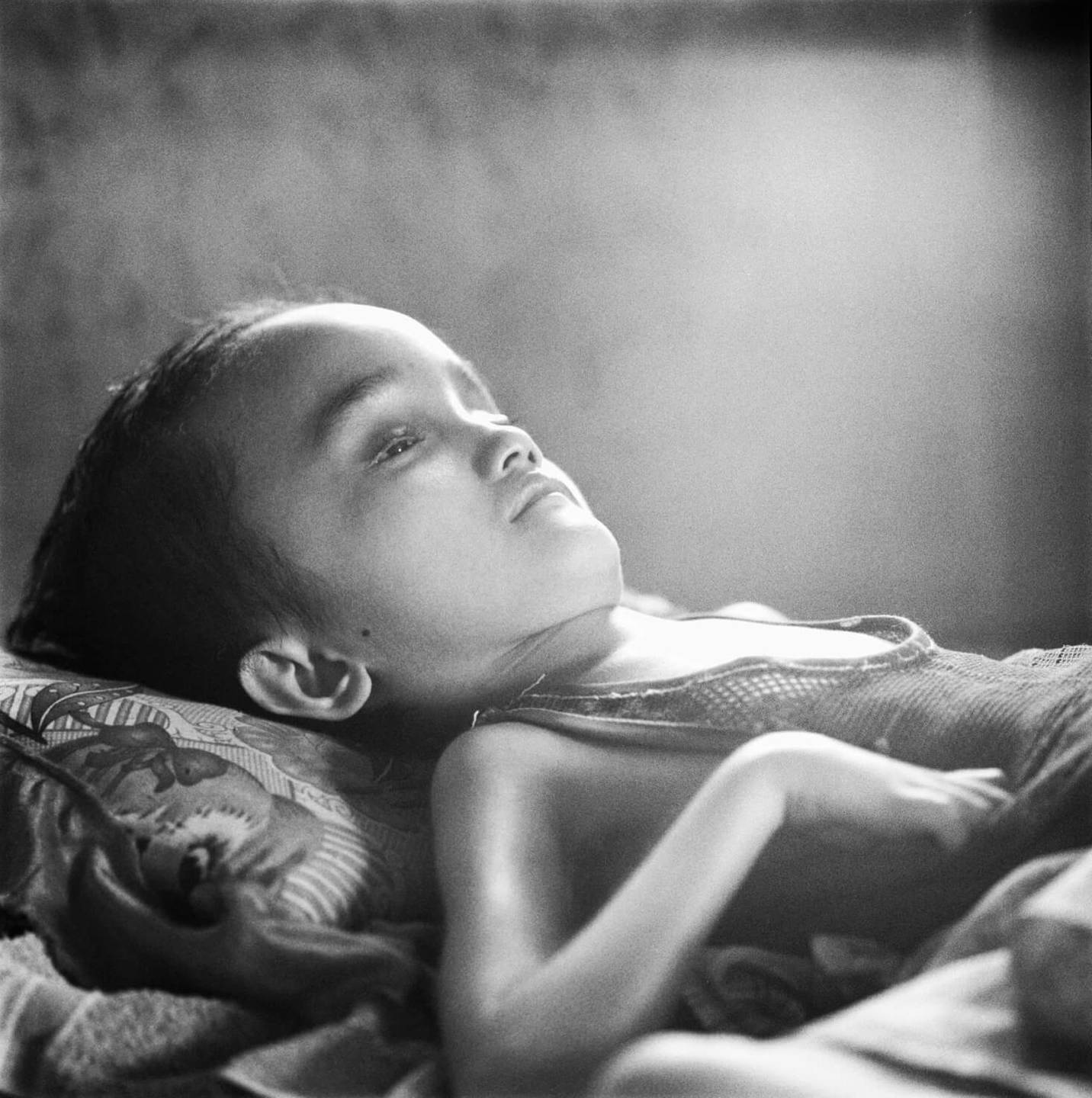 A deformed Asian child lying in bed, sun shining on her.