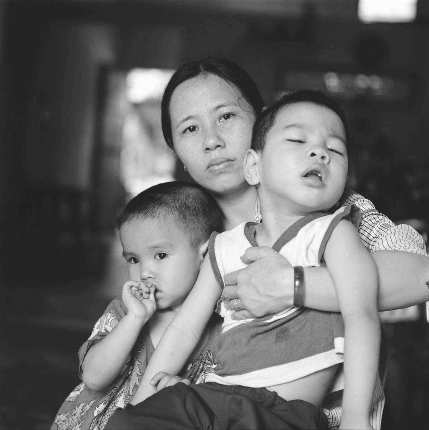 Young Asian mother holding her two children, one who is deformed.
